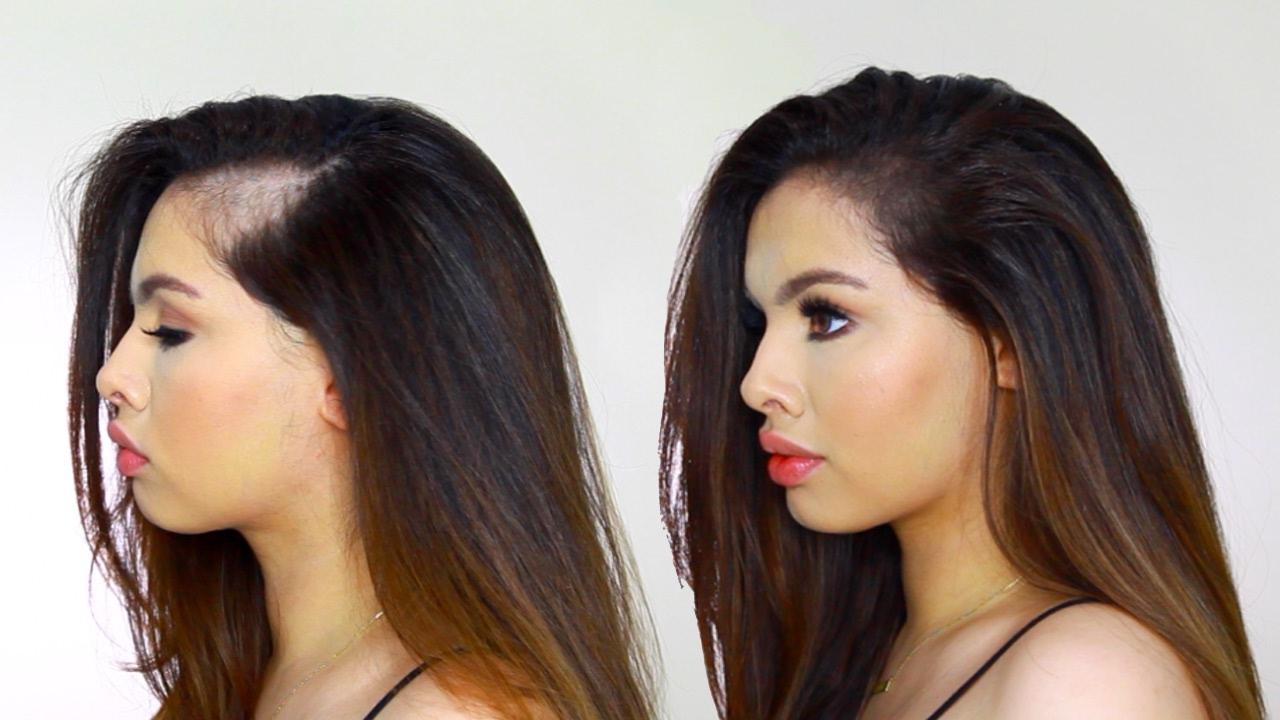 Can Hair Products Avoid Hair Loss?