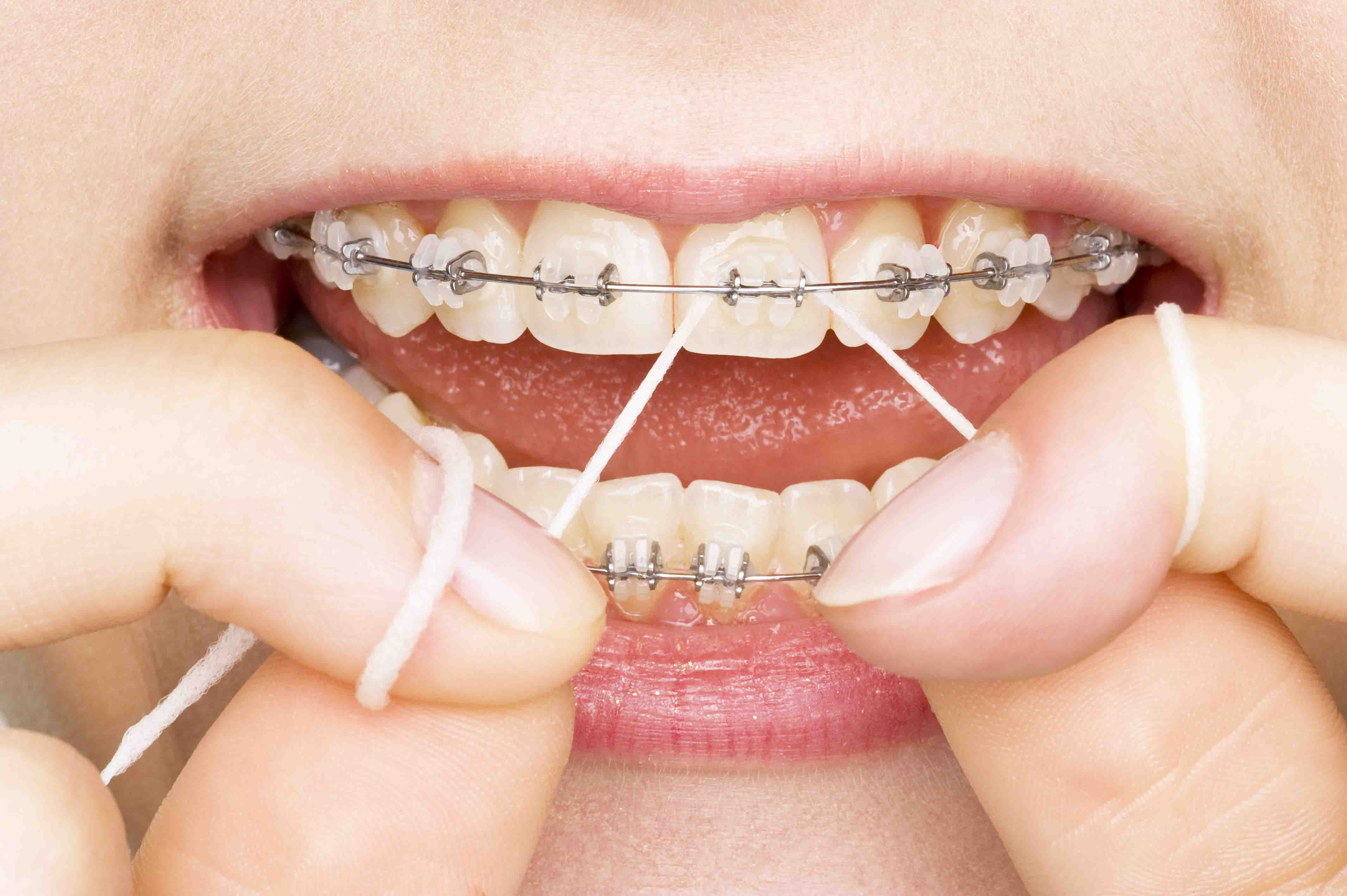 Get a Celebrity-like Glittering Smile With Cosmetic Dentistry